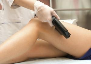 Методы лечения варикоза в современной медицине