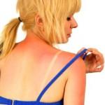 Как помочь обгоревшей на солнце коже