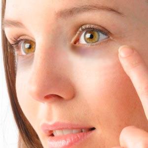 Синяки под глазами: причины, как спрятать их