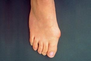 Как избавиться от косточки на большом пальце ноги.