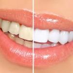 Как сохранить белоснежность зубов