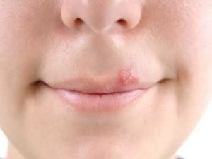 Как лечить герпес на губе