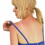 Первая помощь при солнечных ожогах народные средства