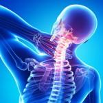Лечение остеохондроза народными методами