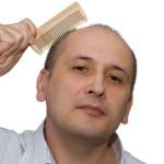 Почему мужчины лысеют, и как этого избежать